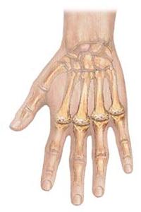Alimentos para Combatir la Artritis Reumatoide