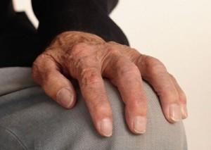 ¿Con Qué se Cura la Artritis Reumatoide?