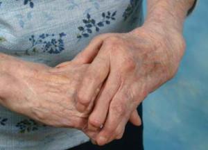 ¿Hay una Cura para la Artritis Reumatoidea?