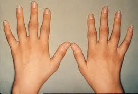 Qué es Bueno para la Artritis en las Manos