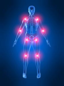 Qué Hacer para Aliviar el Dolor de la Artritis