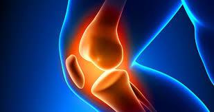 Remedios Caseros para la Artritis en las Rodillas