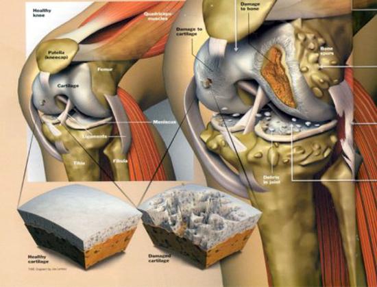 remedios-caseros-para-la-artritis-en-las-rodillas