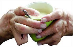 Remedios Naturales para la Artritis en las Manos