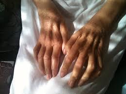 Alimentación para Desinflamar la Artritis en las Manos
