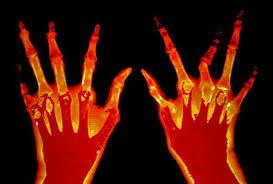 Antiinflamatorios para la Artritis Reumatoidea de Origen Natural
