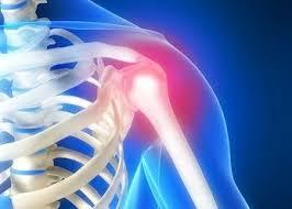 ¿El Pollo es Malo para la Artritis?