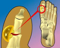 ¿Qué Tiene que Ver el Ácido Úrico con la Artritis?