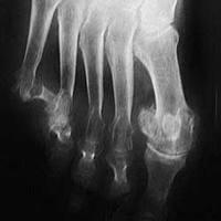 Cómo Deshinchar los Pies si Tienes Artritis Reumatoidea