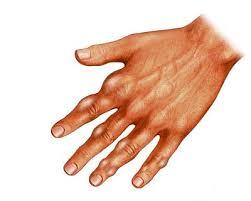 ¿El Ácido Úrico Tiene Algo que Ver con la Artritis?