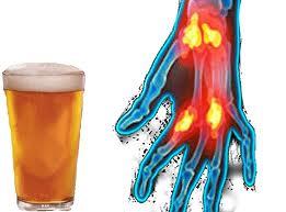 ¿La Artritis Empeora si Tomo Alcohol?