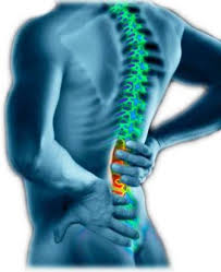 Qué es malo para tratar la artritis