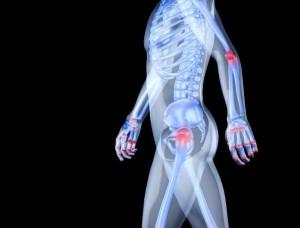 Cómo levantarse de la cama cuando tienes artritis reumatoidea