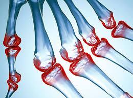 ¿Necesitas Ayuda Para Calmar el Dolor de la Artritis?