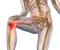 la inflamación en la articulación