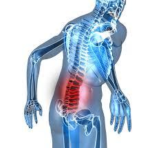 Artrosis de Columna: Tratamiento Natural con Ejercicios y Remedios Caseros