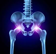 Cómo Se Cura la Artrosis de Cadera sin Cirugías