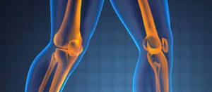 Consejos Básicos para Mejorar tu Artrosis sin Necesidad de Tratamientos Médicos Tradicionales