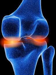 ¿La Glucosamina Sirve para la Artrosis de Cadera y para los Demás Tipos de Artrosis?