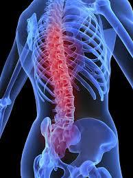 Tratamiento Natural para la Artrosis de Columna con una Dieta Rica en Vitaminas
