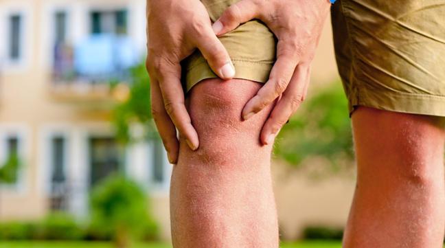 Natural Arthritis Pain