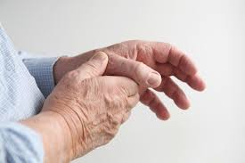 What is Arthritis in Thumb Joint