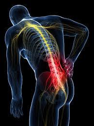 Cómo Aliviar el Dolor de la Artrosis Lumbar