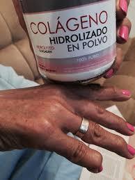¿El Colágeno Hidrolizado Sirve para la Artrosis?