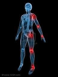 ¿El Frío Produce Artrosis? Consejos Naturales para Aliviarlo